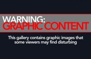 Warning: graphic photos ahead.